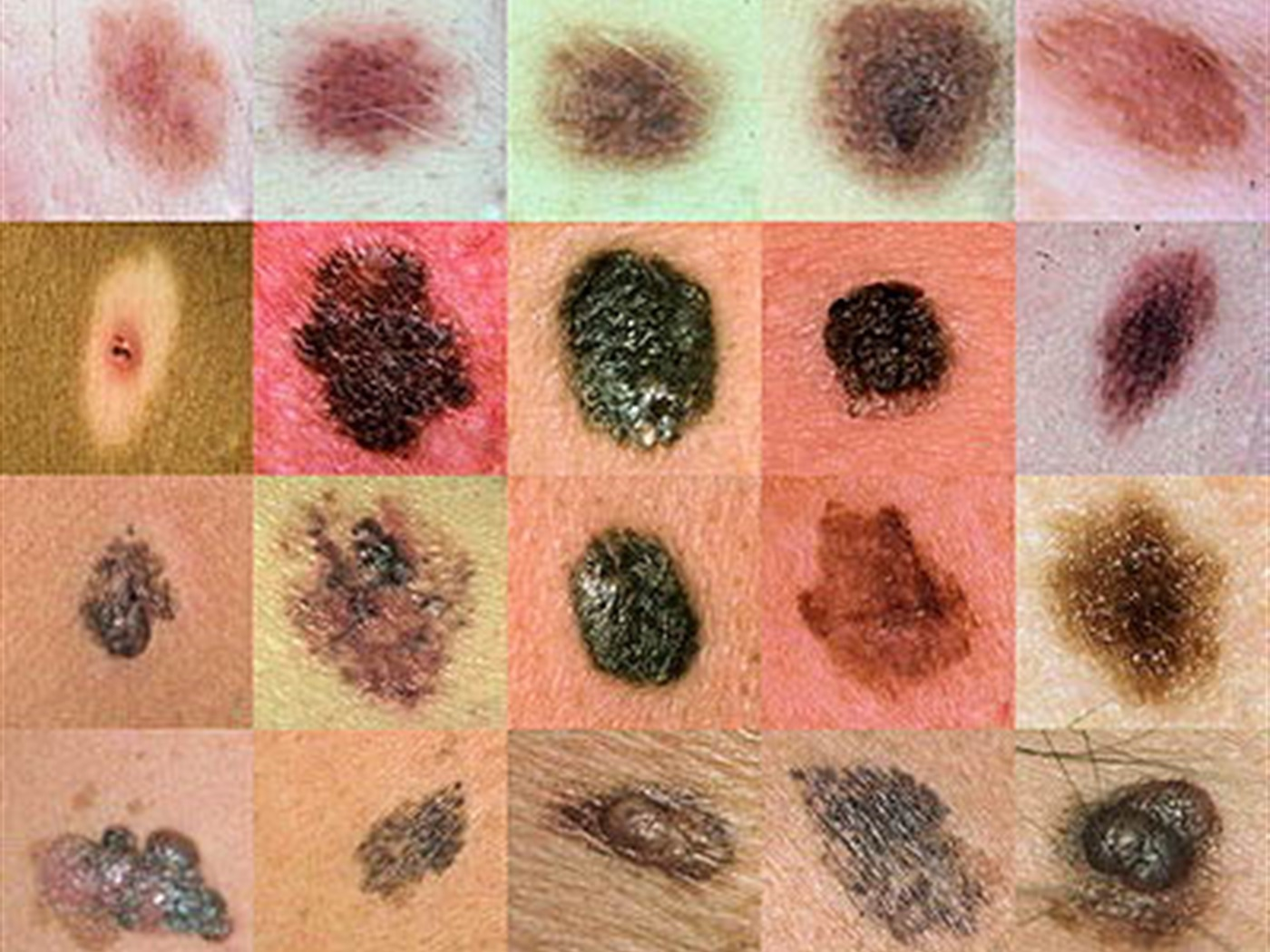 Melanom kože i prevencija