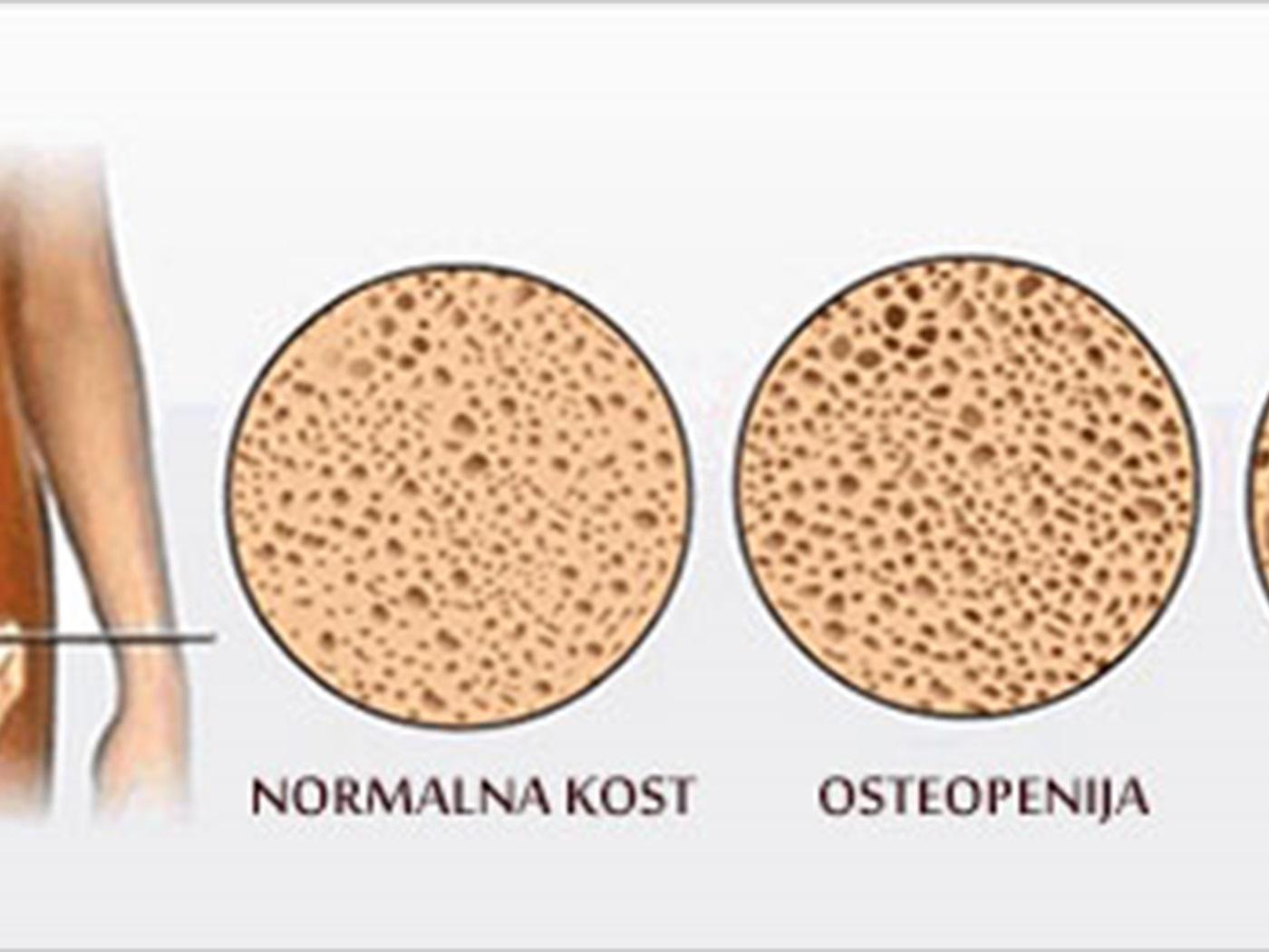 osteoporoza 2b